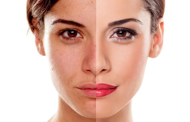 Reduce Skin Pigmentation in 7 Days in Marathi