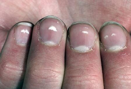 längsgående ränder på naglarna