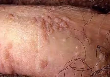 Penyakit Kutil Pada Batang Penis