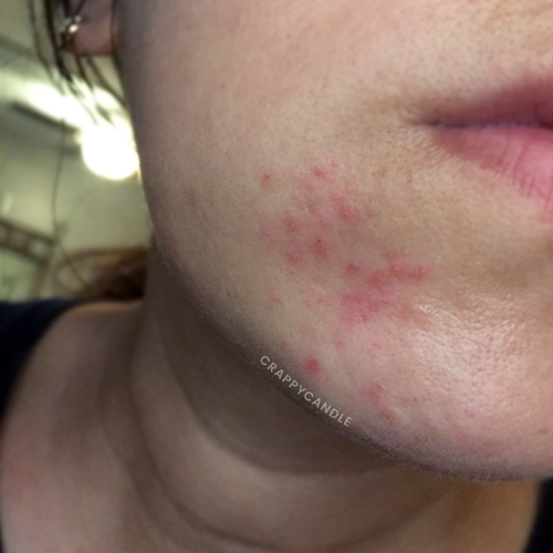 Guide to Perioral Dermatitis Part 1 - The Basics :: POD