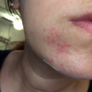 Mild Perioral Dermatitis / Chin Rash Flare-up :: Crappy Candle