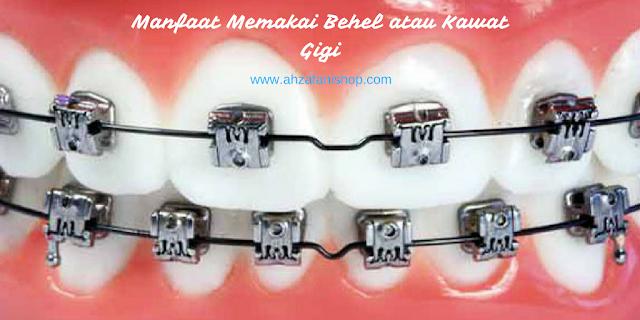 Manfaat Memakai Behel atau Kawat Gigi