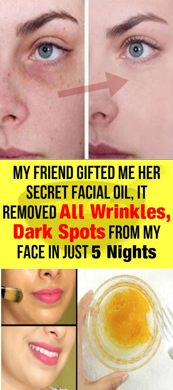 Secret Facial Oil, It Removed All Wrinkles, Dark Spots From My Face In Just 5 Nights