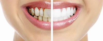 Manière efficace d'enlever le tartre des dents