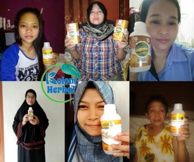 Obat Penghilang Varises Herbal Pada Saat Hamil