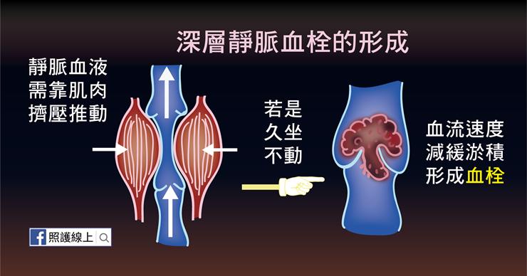 深層靜脈血栓的形成