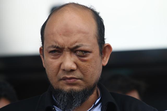 700 Hari Kasusnya Tak Terungkap, Novel Baswedan: Presiden Membiarkan!