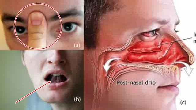 cara mengatasi hidung mampet tersumbat dengan mudah