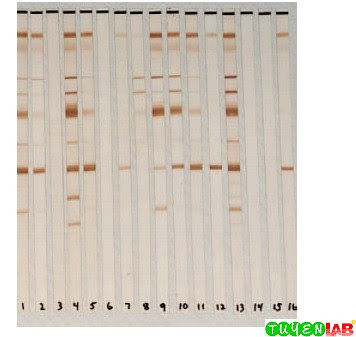 Western blot for the detection of antibody to HIV-1.
