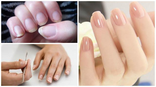 नाखूनों के रोग , Nakhun (Nails) Ki Bimari Ka Ilaj