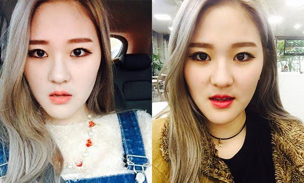짱이뻐! - Never Regret Doing Korean Two Jaw Surgery