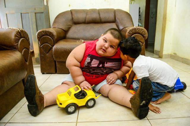 5χρονος: Ζυγίζει 80 κιλά και κινδυνεύει να πεθάνει