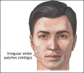 vitiligo, leucoderma