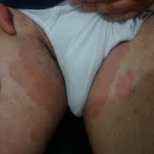 salep gatal gatal selangkangan dan lecet perih di kulit