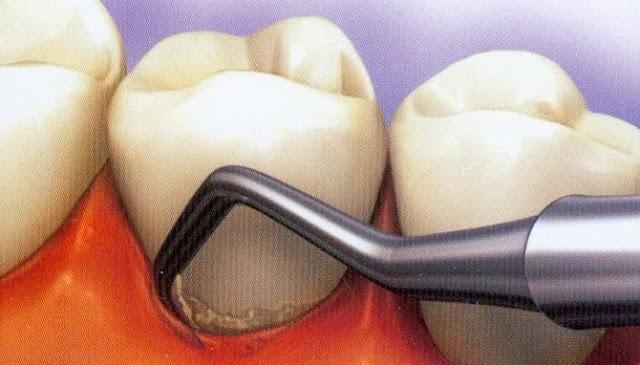 Sembilan Tips And Trick Tuk Cegah Dan Hilangkan Karang Di Gigi Secara Alami