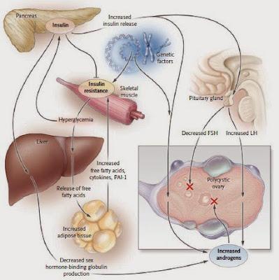 resistensi insulin wanita pcos