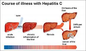 हैपेटाइटिस सी के लक्षण Hepatitis- which is called in Ayurveda Yakrit Saoth