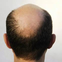 cara menumbuhkan rambut secara alami yang sudah botak dengan menggunakan Telur