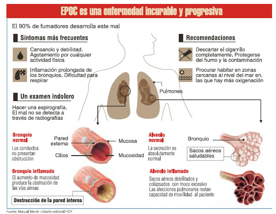que es la tuberculosis pulmonar yahoo dating