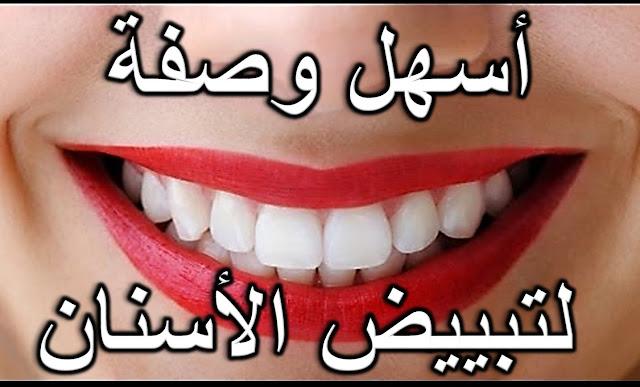 لا تفوتيها .. وصفة قوية لتبييض الأسنان الصفراء البيضاء الى الابد!