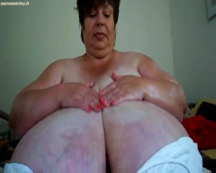 macromastia nipples