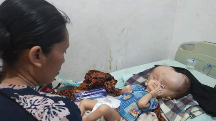 Riski bayi Asal Tanjungbalai yang butuh uluran tangan para dermawan.