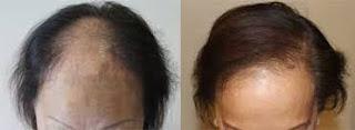saç ekimi bayan