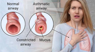 asthma,remedies for asthma,asthma natural remedies,asthma symptoms,asthma attack,asthma causes, Asthma Symptoms and It's Remedies,