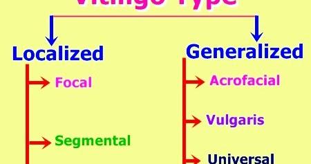 Leucoderma Vitiligo Natural Cure