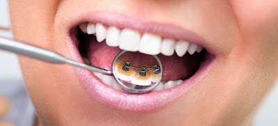 lingual braces cost india