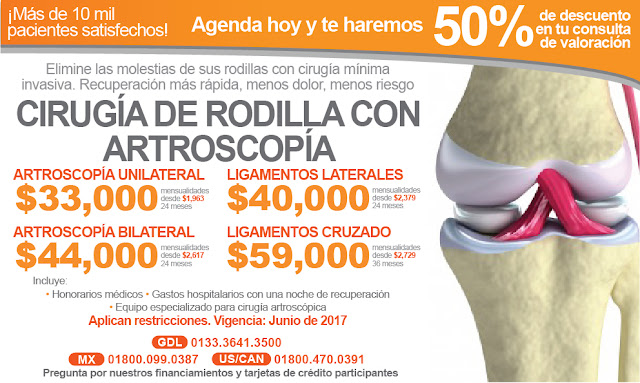 artroscopia cirugia rodilla ligamentos meniscos precio promocion unilateral cruzados guadalajara