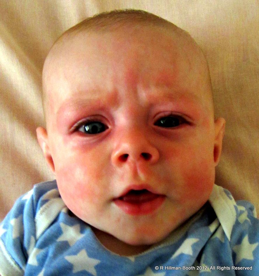 KangaRue - SilverLinings: 57/366 - Allergic Reaction?