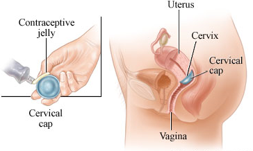 cervical cap,cervical cap reviews, cap definition, cervical cap birth control, cervical cap side effects, cervical cap and women, cervical cap birth controller,