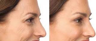 Lo que realmente hace el Botox es básicamente ralentizar el crecimiento de los tejidos en el reloj biológico del músculo aplicado- en cámara lenta.