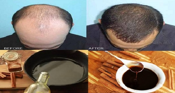 Forget About Hair Loss And Baldness! Regrow Your Hair With This Magic Recipe In Only Two Days