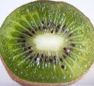 Manfaat Buah Kiwi untuk Kesehatan dan ibu hamil