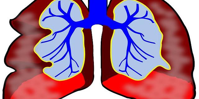 4 Tips Mengatasi Dahak di Paru-paru