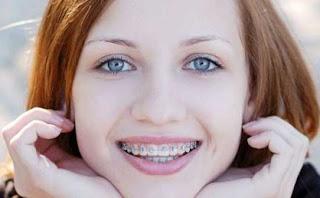Cara merawat gigi behel