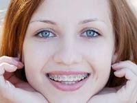 Cara Merawat Gigi Behel Agar Tetap Bersih Dan Sehat