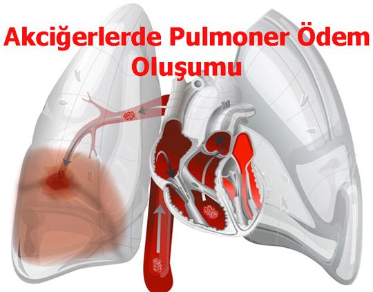 Akciğerlerde Pulmoner Ödem Oluşumu