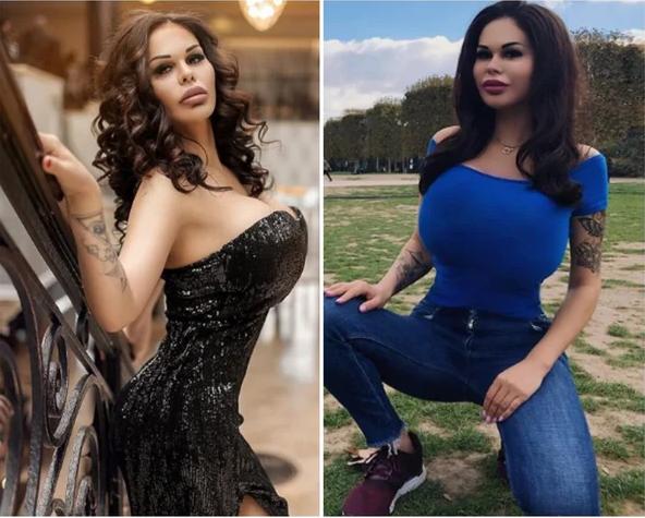 Девушки, которые «немного» перестарались с увеличением груди