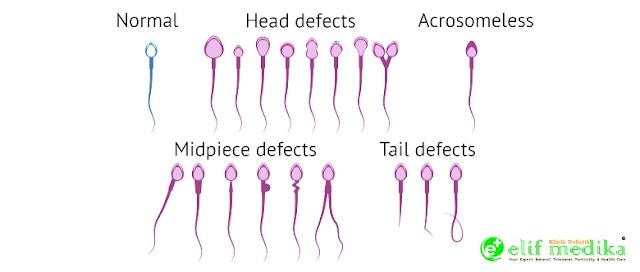 Bentuk sperma normal dan abnormal atau cacat