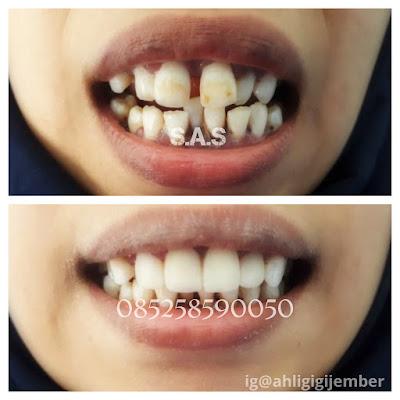Merapikan gigi renggang tanpa behel veneer gigi renggang gigi berjarak