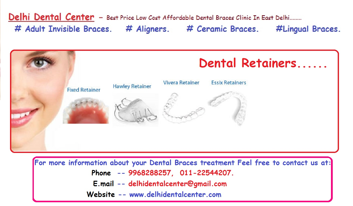 essix retainer cost, essix retainer price, removable