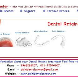 dental retainer cost, dental retainer price, orthodontic