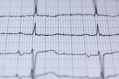 Pantangan Makanan Untuk Penderita Penyakit Jantung