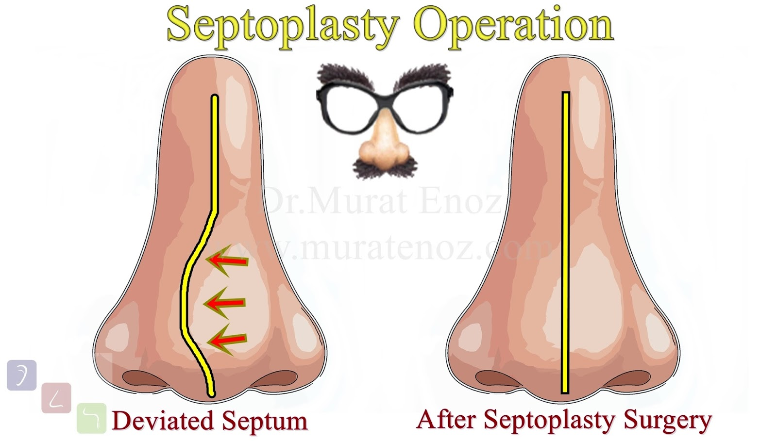Septoplasty Operation