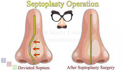 Septoplasty Operation - Septoplasty Surgery - Deviated Septum Treatment Istanbul