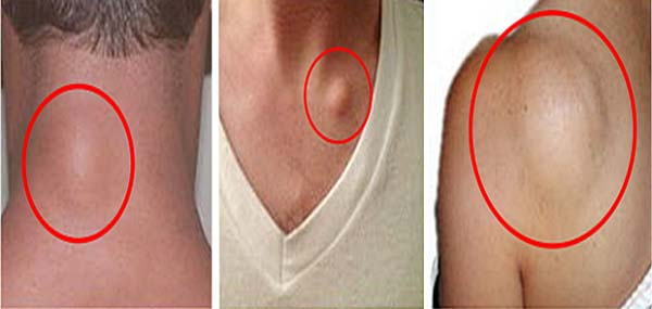 Remove Fat Tissue (Lipoma) Naturally In 8 Days, Confirmed By Thousands Of People!