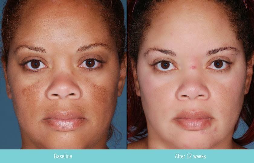 Ibunmeey Retinol Cream Anti Aging Cream For Sunburn Acne